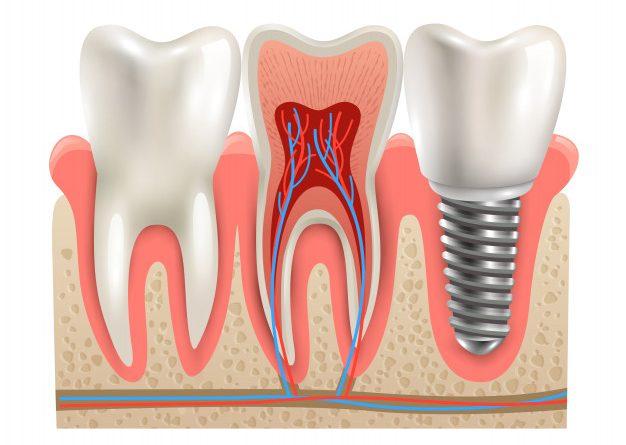 zobni implantati ljubljana